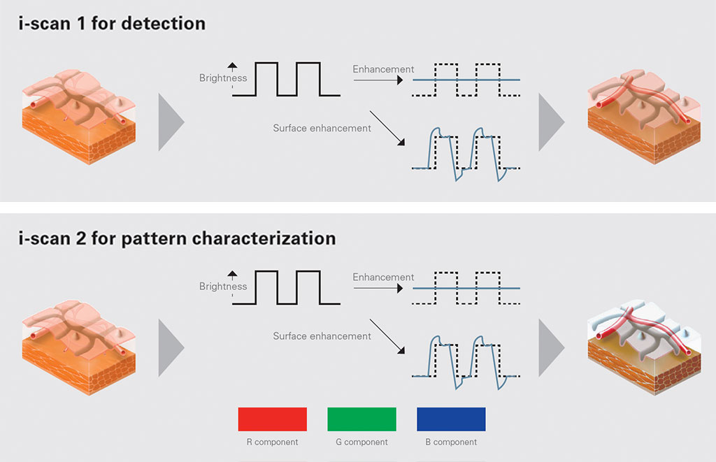 Enhanced Detection and Characterization with i-scan
